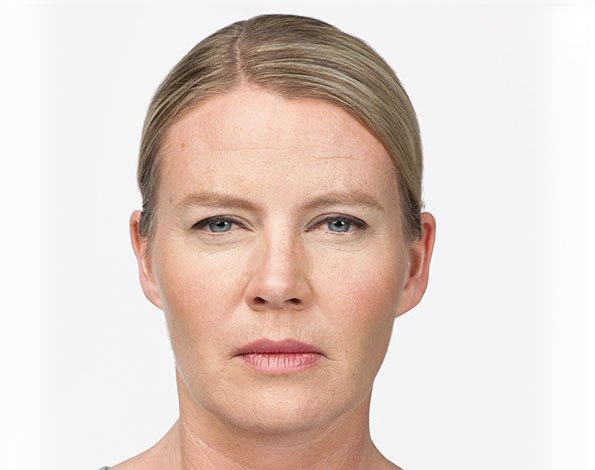 7 Days After Botox